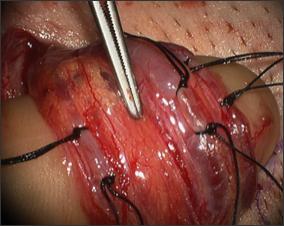 péniszvénás műtét