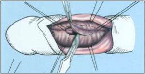 pénisz görbület jelei