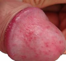 pénisz csúnya
