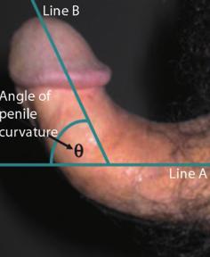 Pirosság a pénisz a prosztatitis
