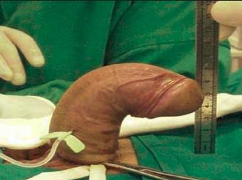 pénisz műtét)